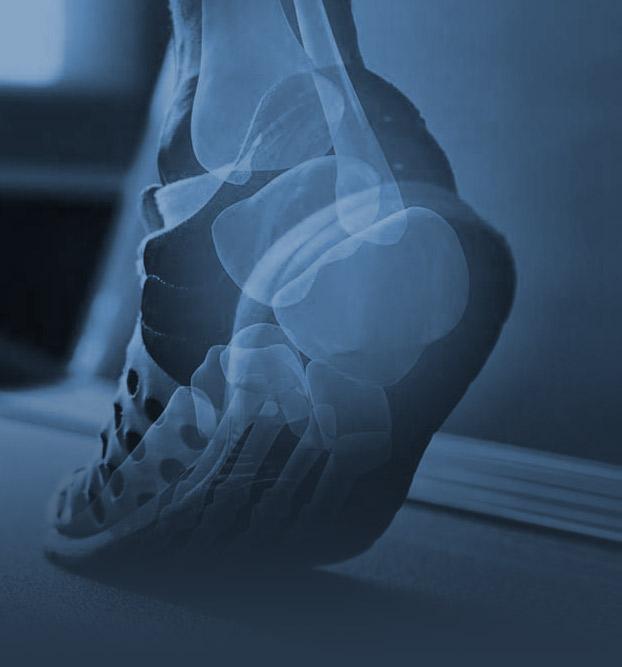 img-analisi-posturale-integrata-ippoliti